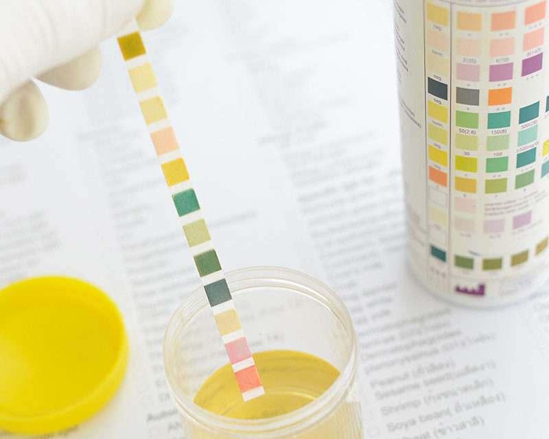 Độ pH của nước tiểu