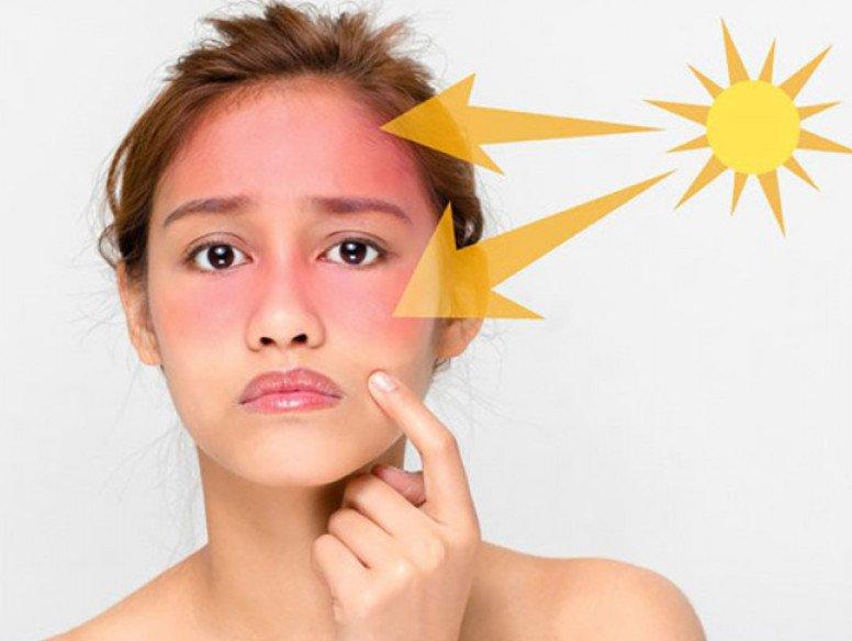 Tia cực tím gây tác hại da